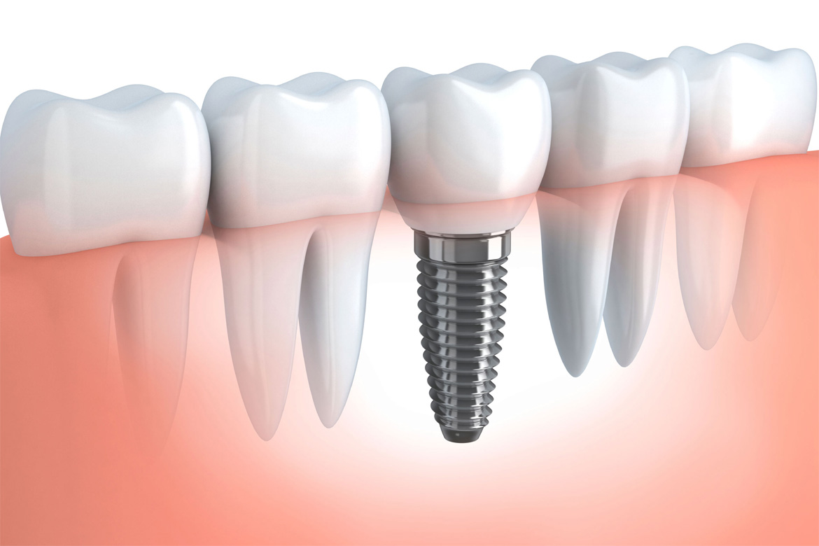 Dental Implants in Mexico Tijuana